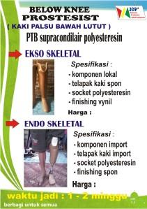 kaki palsu bawah lutut