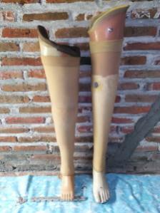 kaki palsu malang