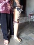 kaki palsu Lampung