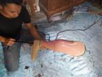 pengrajin kaki palsu bawah lutut