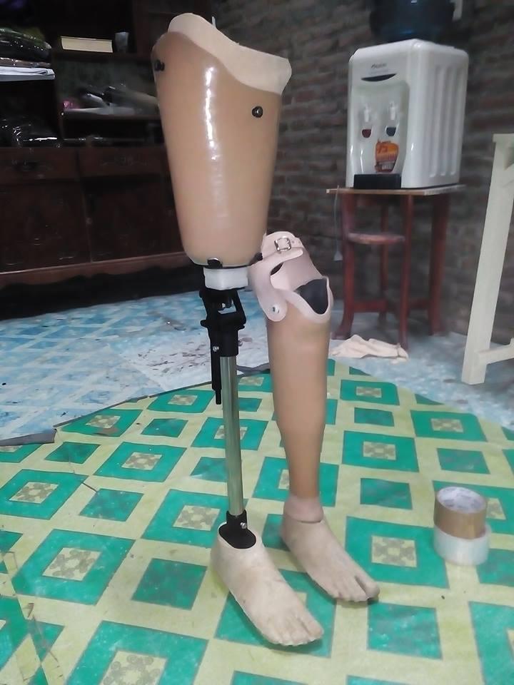 macam kaki palsu
