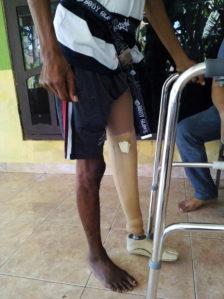 manfaat kaki palsu