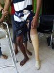 cara memakai kaki palsu atas lutut