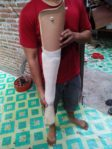 kaki palsu Mojokerto