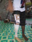 latihan jalan dengan kaki palsu