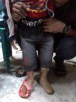 pembuatan kaki palsu anak