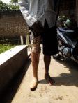 pasien kaki palsu Jawa Timur