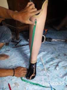 pasien kaki palsu Nusa Tenggara Timur