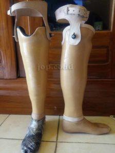 kaki palsu Denpasar