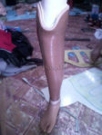 pembuat kaki palsu lokal di Madiun