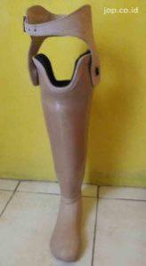 pemesan kaki palsu di Ngawi