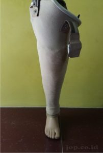 foto kaki palsu diatas lutut