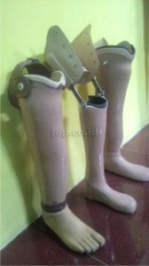 penjualan kaki palsu di luar Jawa