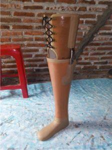 cara mendapatkan kaki palsu gratis