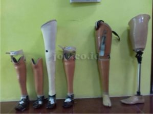 cara mendapatkan kaki palsu
