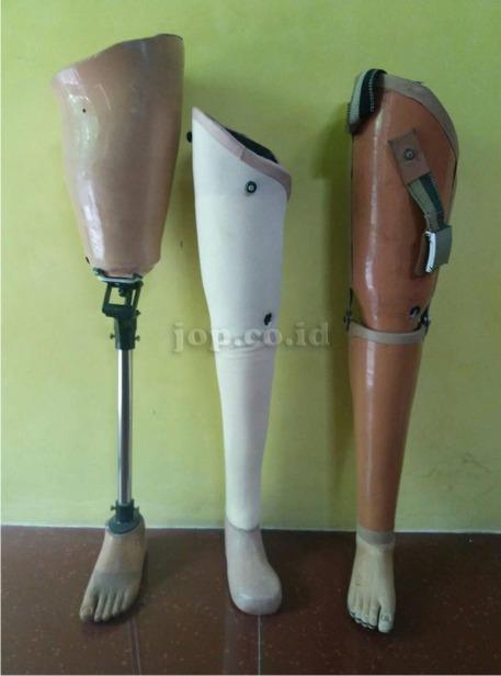 gambar kaki palsu