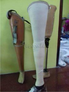 bengkel kaki palsu Yogyakarta