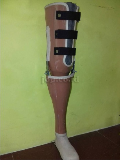 gambar kaki palsu atas lutut
