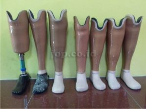 foto kaki palsu bawah lutut
