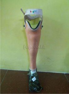 kaki palsu di Palembang