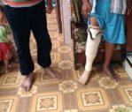 pakai kaki palsu bawah lutut