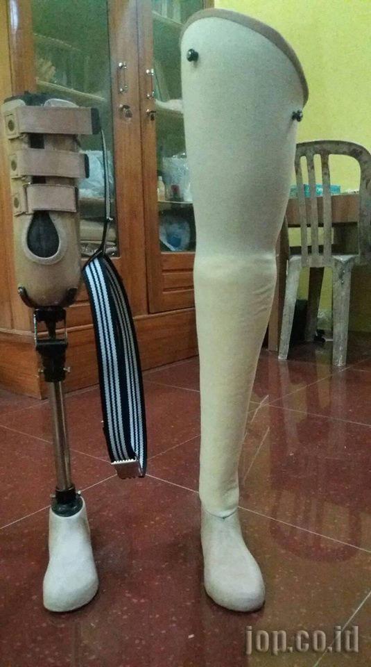 penjualan kaki palsu di jakarta