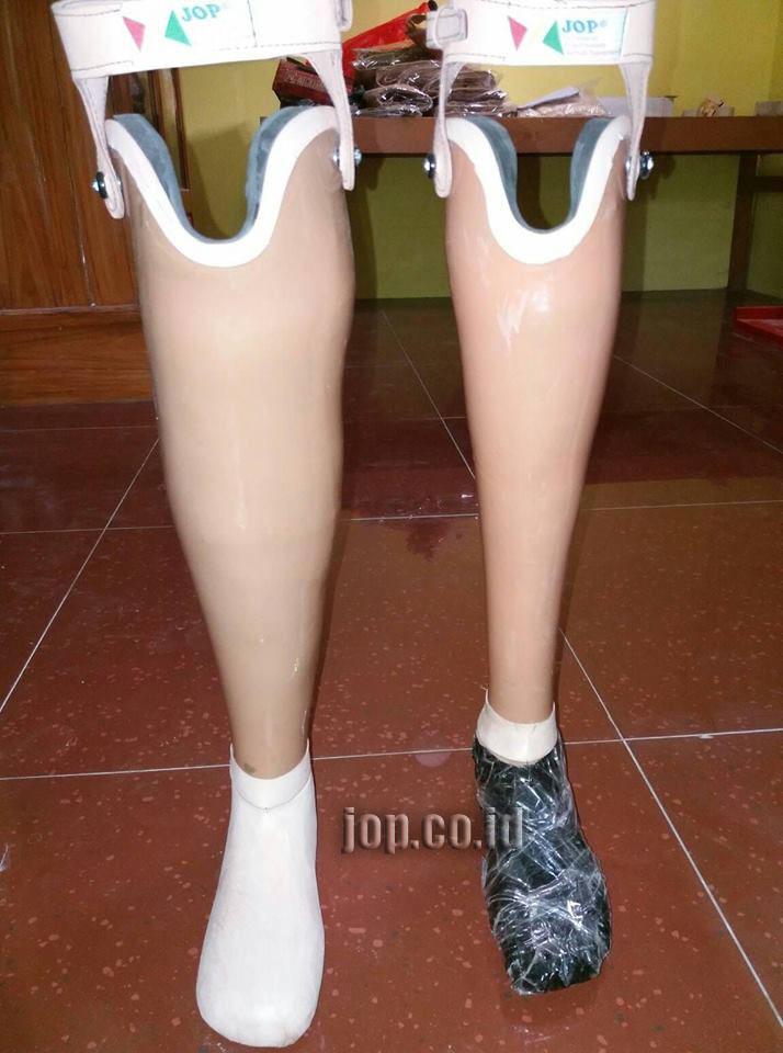 cara memesan kaki palsu unik jop