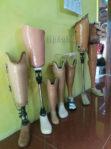 alamat pembuatan kaki palsu di Surabaya